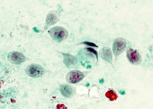 High-Yield Microscopic Pathology Images for USMLE Step 1